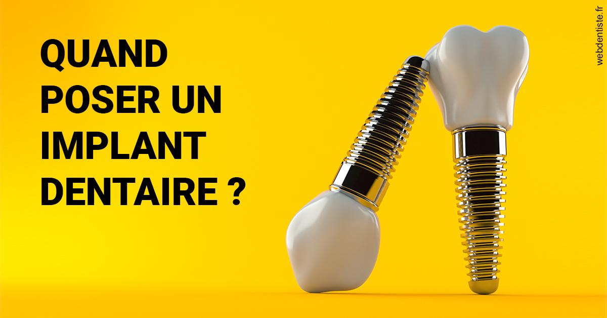 https://dr-treil-bruno.chirurgiens-dentistes.fr/Les implants 2